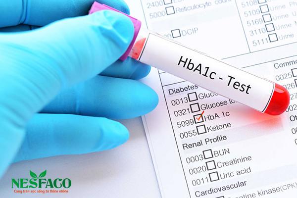 Xét nghiệm HbA1C: Có tác dụng và chỉ định như thế nào?