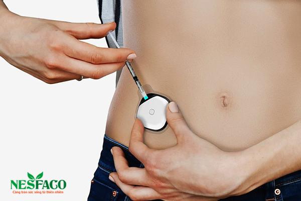 Bệnh tiểu đường và tuyến tụy nhân tạo